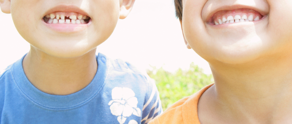 大切なお子様をむし歯から守るための定期的なフッ素塗布
